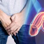 Consejos para cuidar la salud del pene