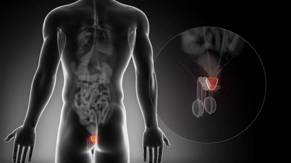 estimulación de la próstata